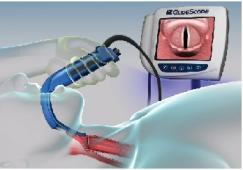 GlideScope Video Laryngoscope
